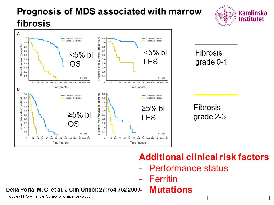 Prognosis of MDS associated with marrow fibrosis