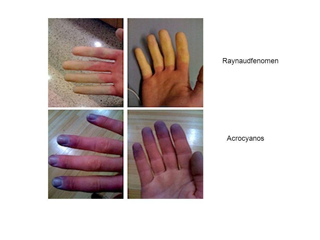 Raynaudfenomen Acrocyanos 18