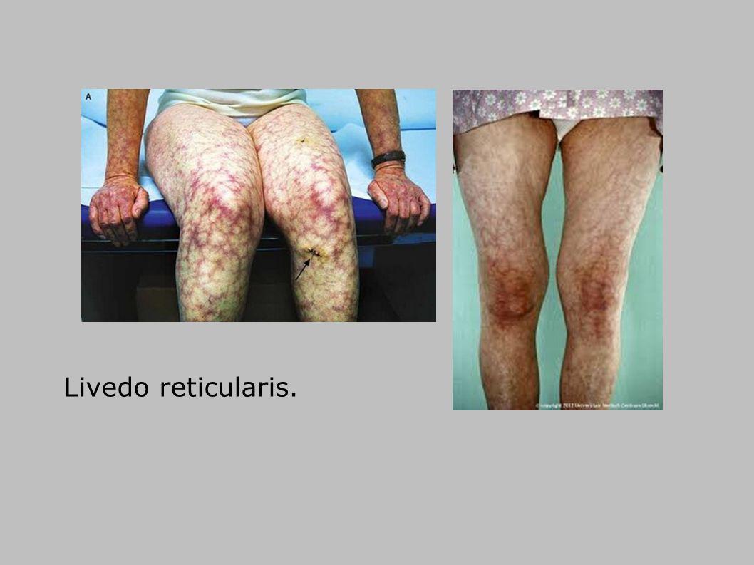 Livedo reticularis. 8 8 8 8 8