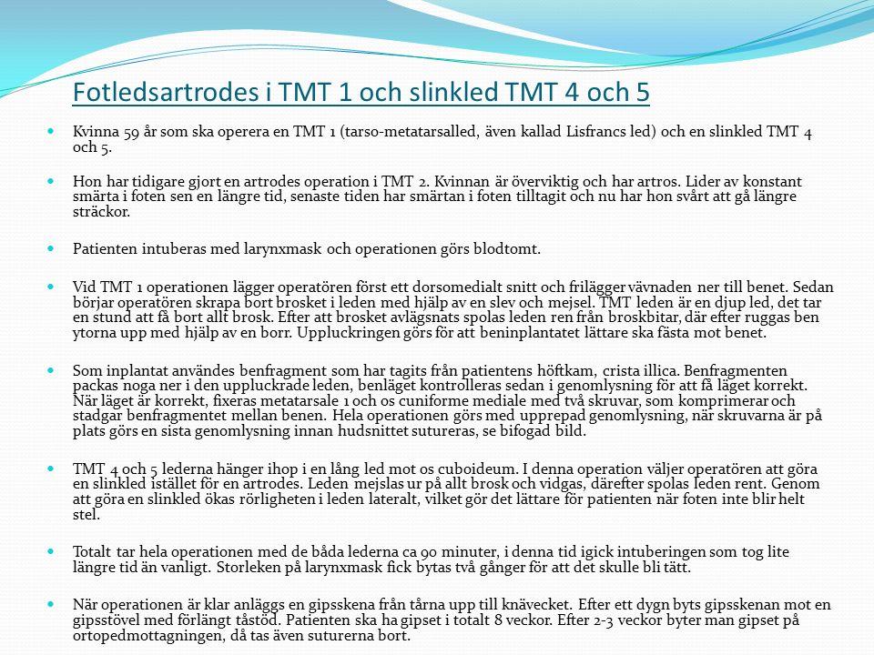 Fotledsartrodes i TMT 1 och slinkled TMT 4 och 5