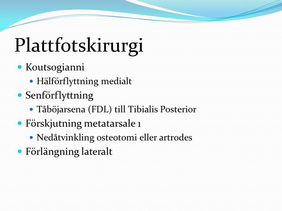 Plattfotskirurgi Koutsogianni Senförflyttning