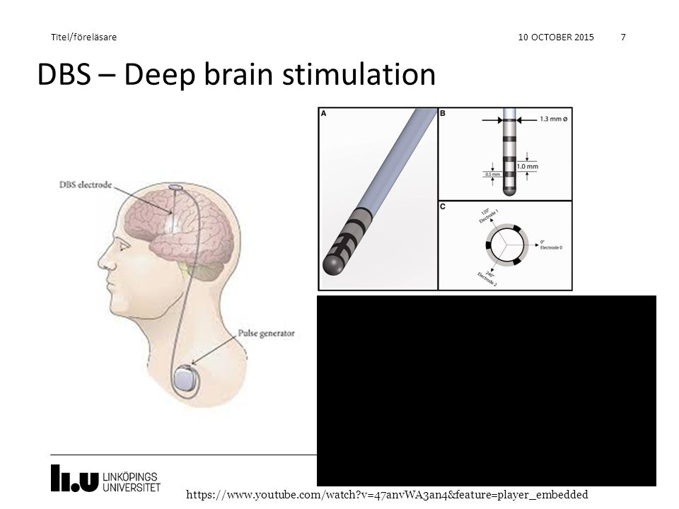 DBS – Deep brain stimulation