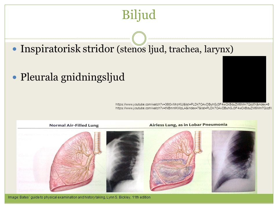 Biljud Inspiratorisk stridor (stenos ljud, trachea, larynx)