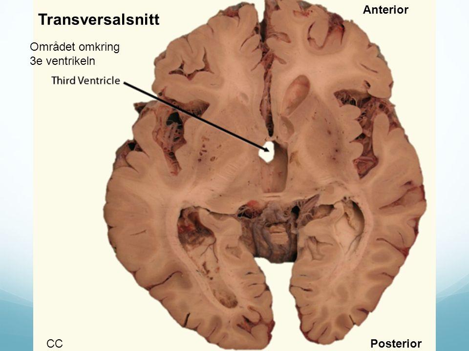 Anterior Transversalsnitt Området omkring 3e ventrikeln CC Posterior