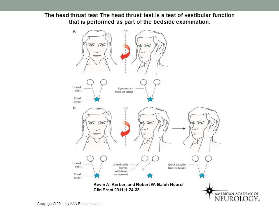 The head thrust test The head thrust test is a test of vestibular function that is performed as part of the bedside examination.