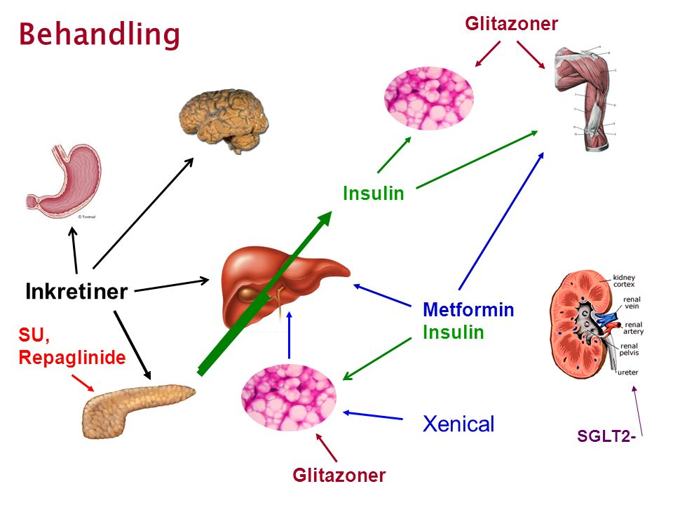 Behandling Inkretiner Xenical Glitazoner Insulin Metformin Insulin SU,