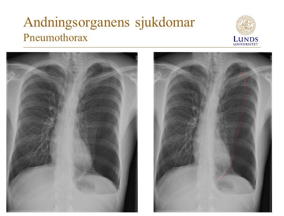 Andningsorganens sjukdomar Pneumothorax