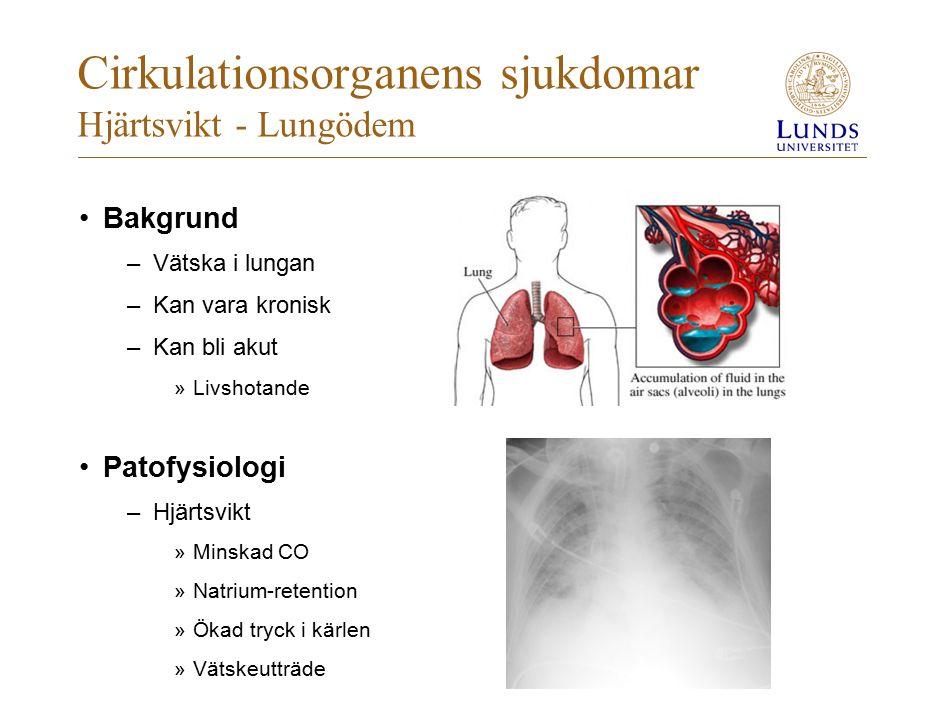 Cirkulationsorganens sjukdomar Hjärtsvikt - Lungödem