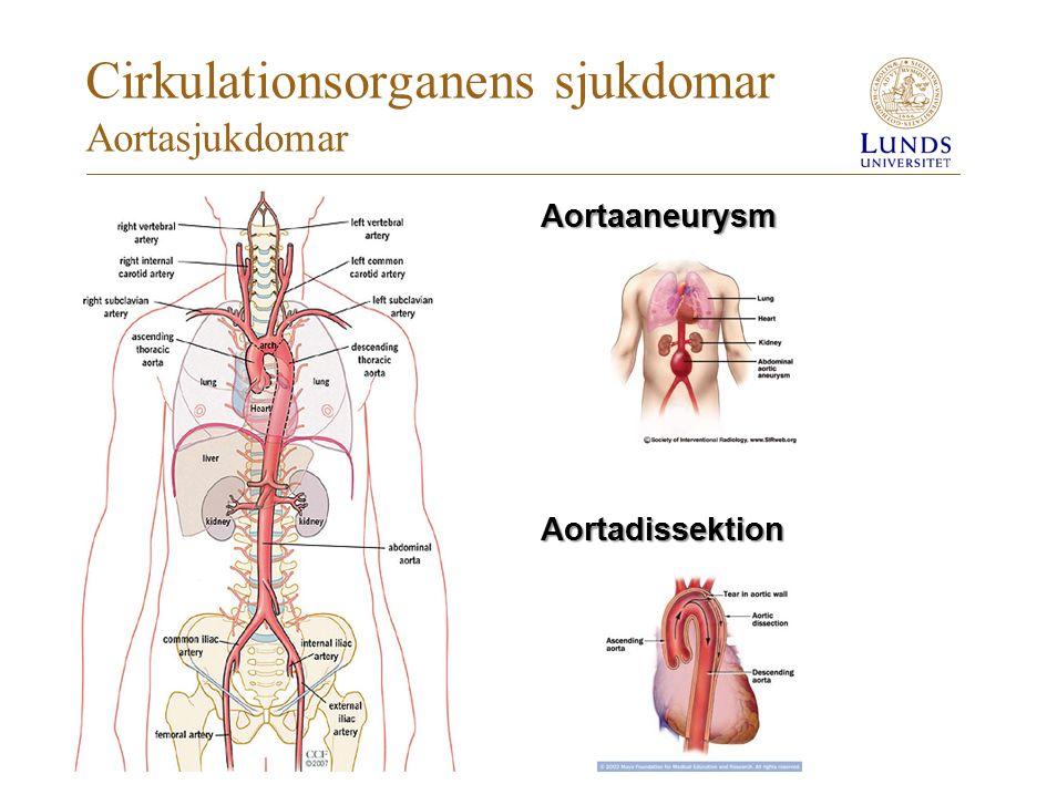 Cirkulationsorganens sjukdomar Aortasjukdomar