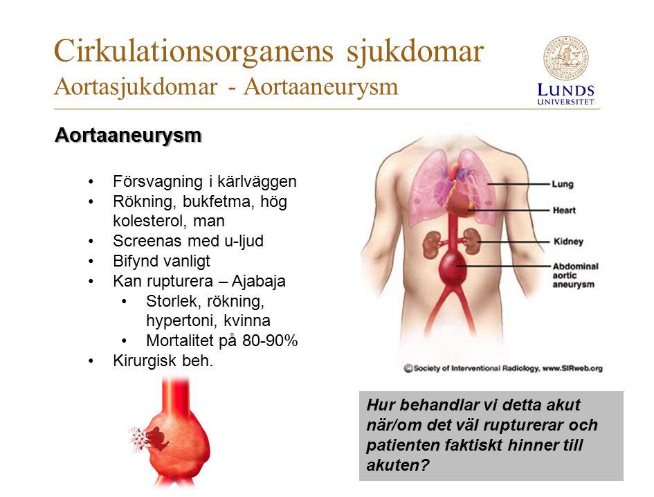 Cirkulationsorganens sjukdomar Aortasjukdomar - Aortaaneurysm