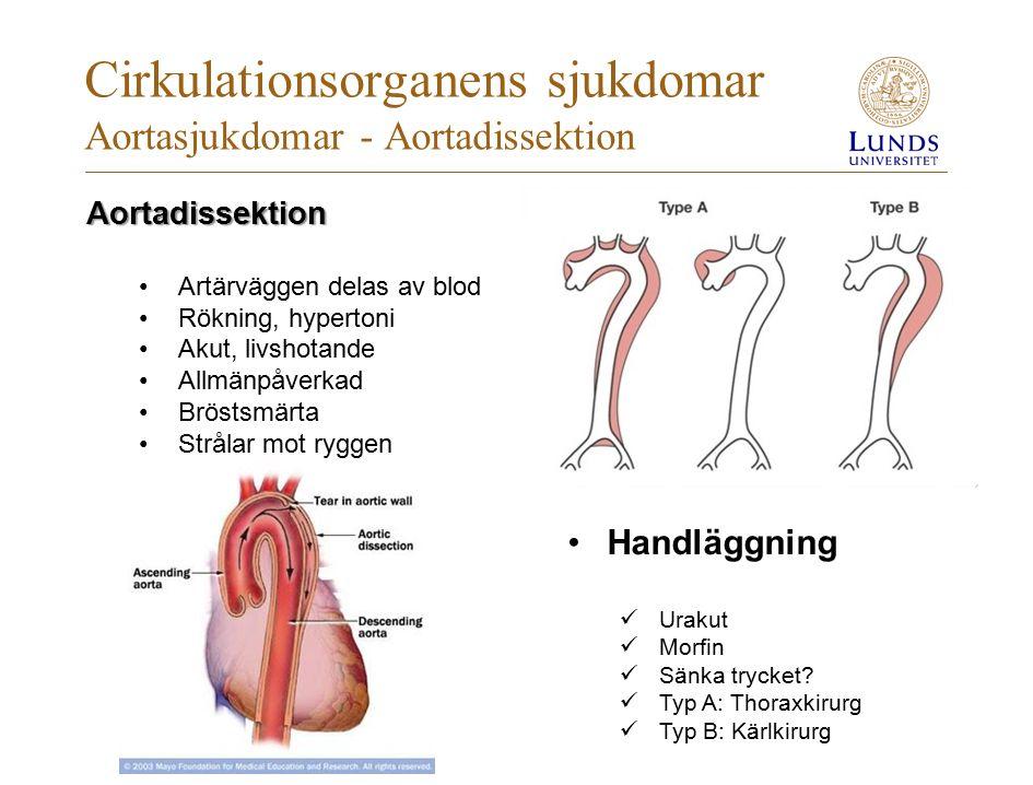 Cirkulationsorganens sjukdomar Aortasjukdomar - Aortadissektion