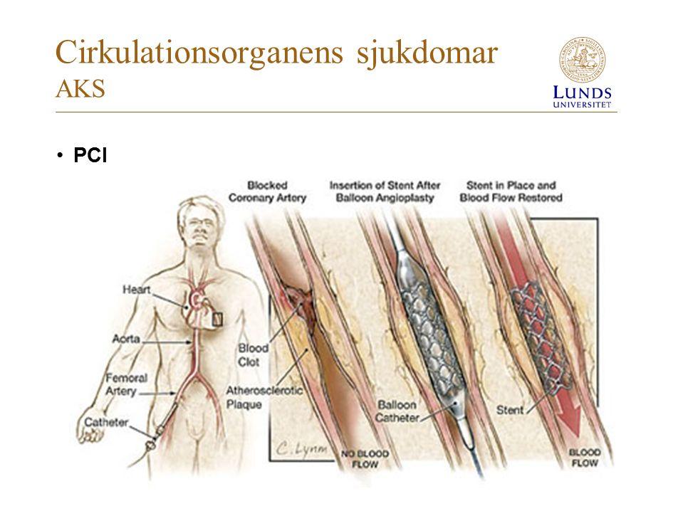 Cirkulationsorganens sjukdomar AKS