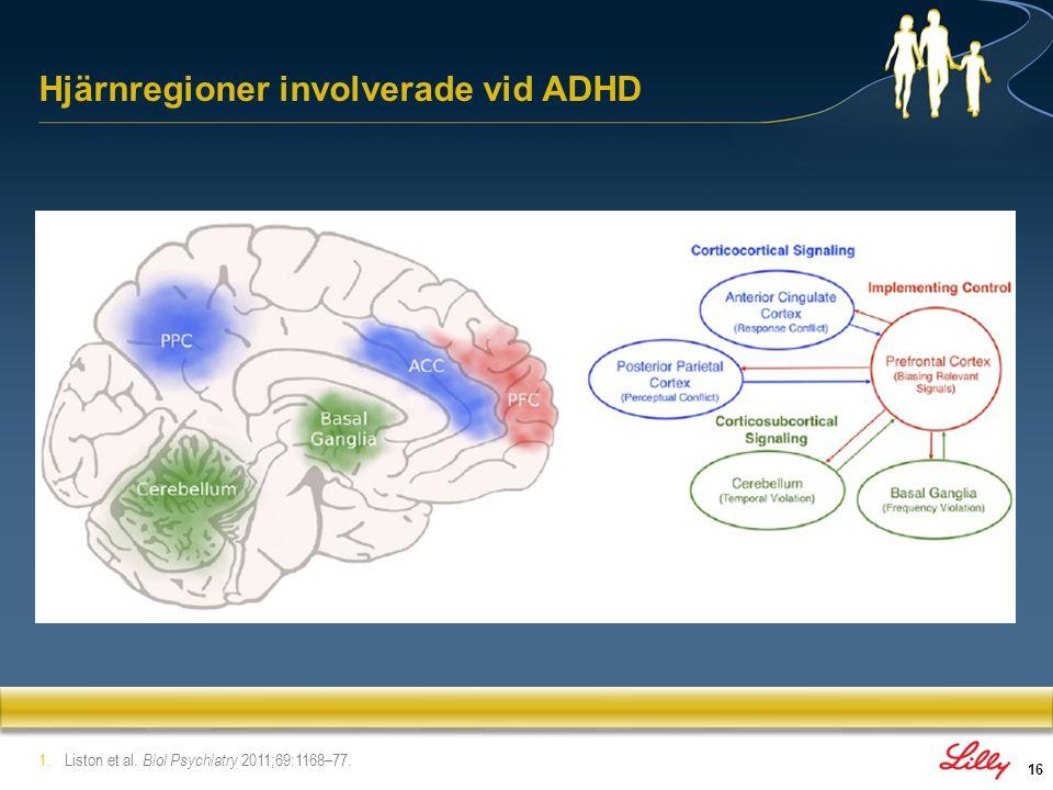 Hjärnregioner involverade vid ADHD