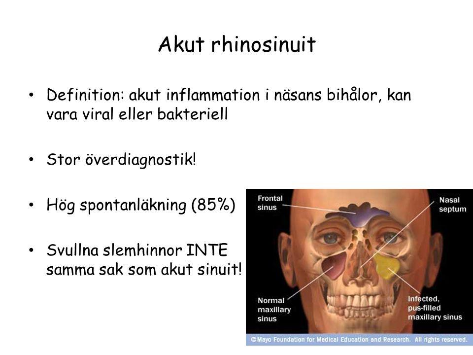 Akut rhinosinuit Definition: akut inflammation i näsans bihålor, kan vara viral eller bakteriell. Stor överdiagnostik!