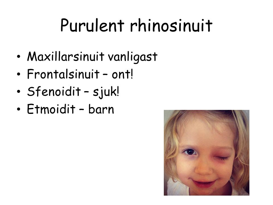 Purulent rhinosinuit Maxillarsinuit vanligast Frontalsinuit – ont!