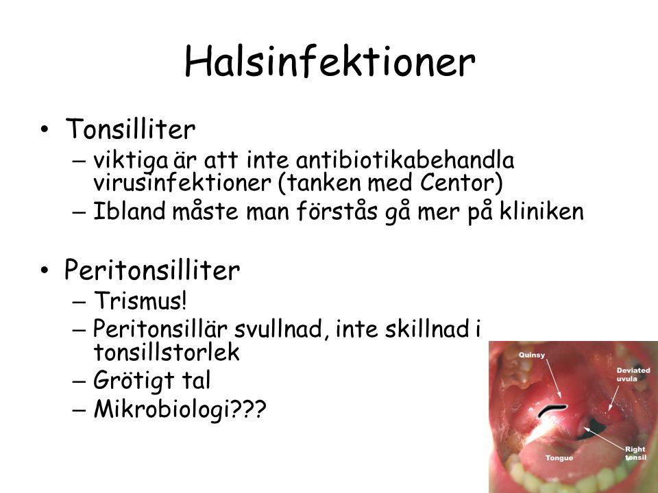 Halsinfektioner Tonsilliter Peritonsilliter