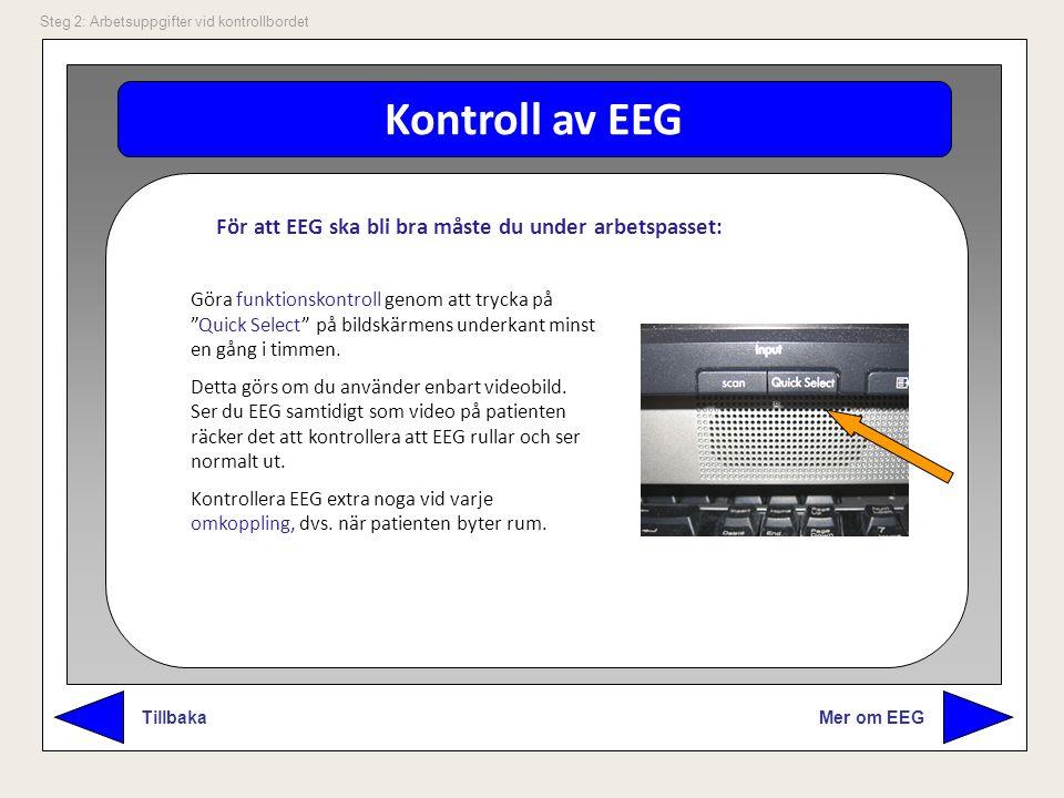 Kontroll av EEG För att EEG ska bli bra måste du under arbetspasset: