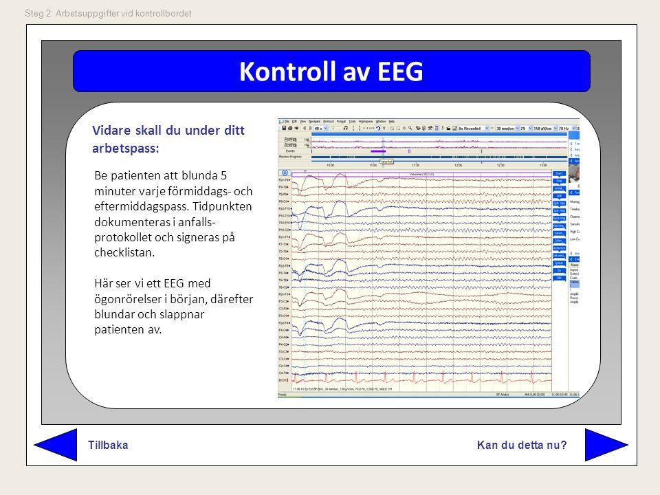 Kontroll av EEG Vidare skall du under ditt arbetspass: