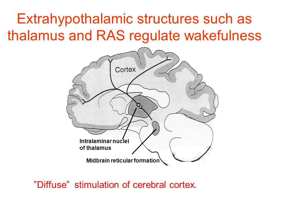 Extrahypothalamic structures such as thalamus and RAS regulate wakefulness