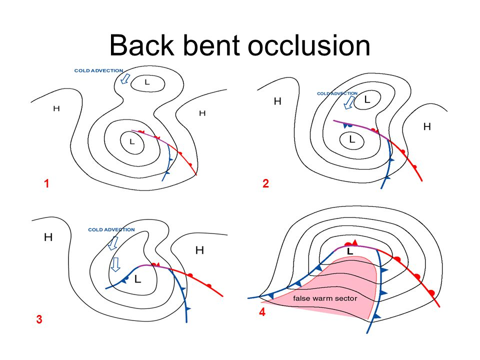 Back bent occlusion