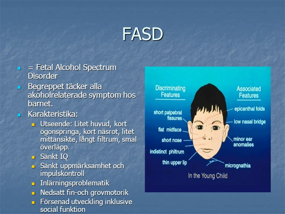 FASD = Fetal Alcohol Spectrum Disorder