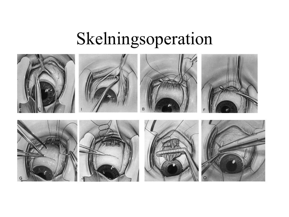Skelningsoperation