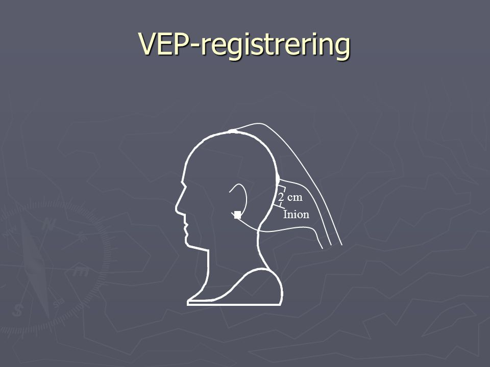 VEP-registrering 2 cm Inion