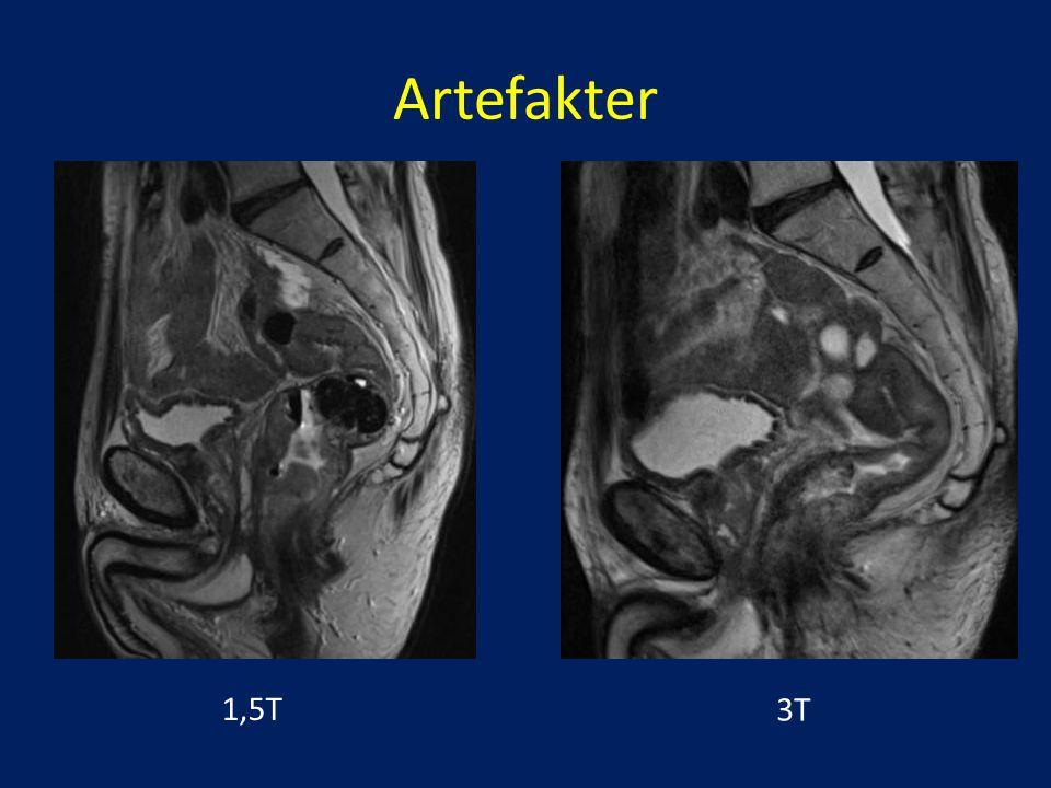 MRI kön video flicka knullad Squirt