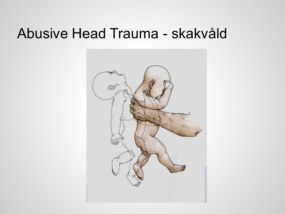 Abusive Head Trauma - skakvåld