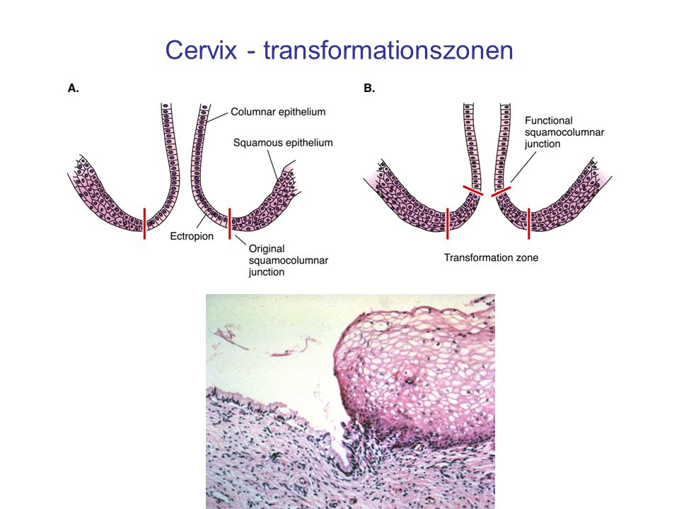 Cervix - transformationszonen
