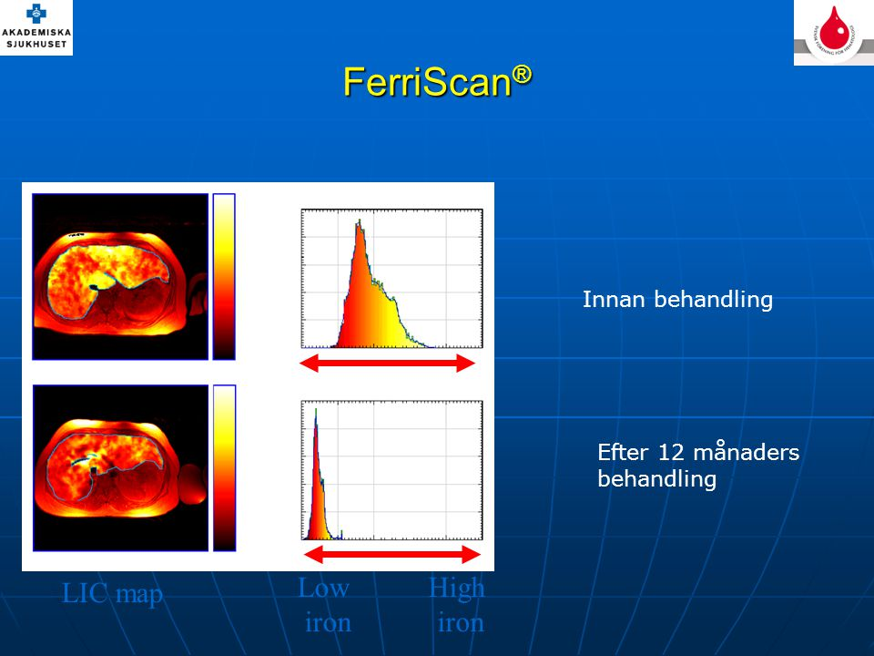FerriScan® High iron Low LIC map Innan behandling