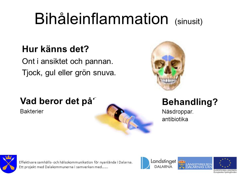 Bihåleinflammation (sinusit)