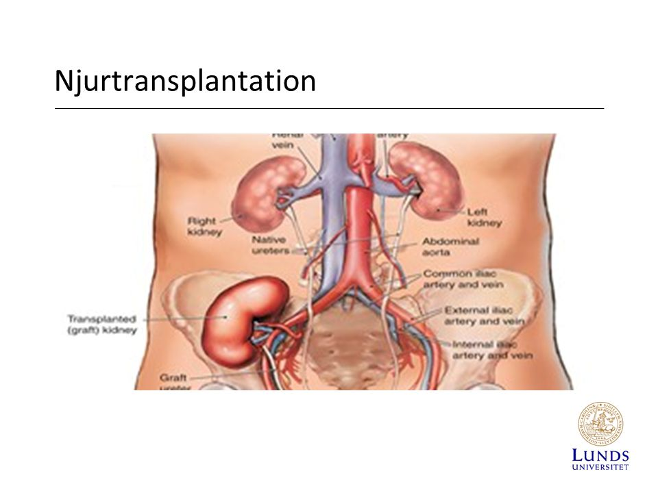 Njurtransplantation